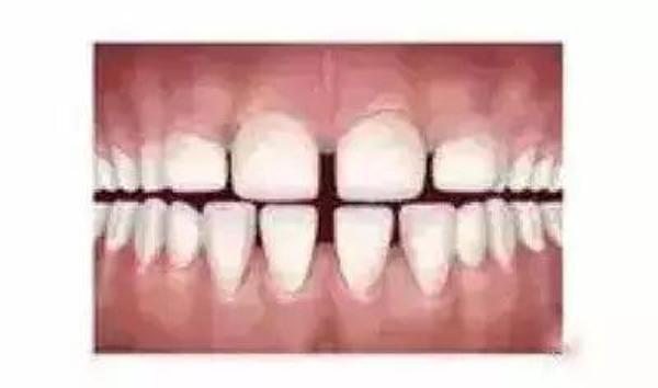 你家小孩的牙齿需要矫正吗?